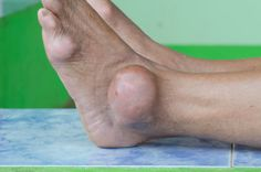 Foods to Avoid if You Have Gout - http://www.doctorshealthpress.com/food-and-nutrition-articles/foods-to-avoid-if-you-have-gout