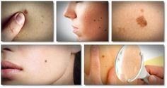 Kožné prívesky, bradavice, materské znamienka a tmavé škvrny patria medzi kožné problémy, ktoré nás ovplyvňujú každý deň. Zmena vo farbe alebo štruktúre môže vyplývať z infekcie, zápalu alebo alergickej reakcie kdekoľvek na našom tele. Väčšina kožných…