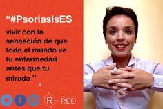 Celia comparte su foto para #PsoriasisEs. #Psoriasis #ArtritisPsoriásica #Piel #Skin