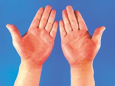 What Does Your Hand Palm Say About Your Health - positiveDrugs Health Facts, Health Tips, Health And Wellness, Medical Laboratory Science, Science Humor, Medical Facts, Medical Information, Rum, Poor Circulation