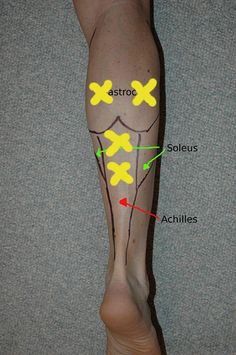 An easy to read post about taking care of  a common trigger point in the calf with a tennis ball.  I really like this blog so far for self treatment.