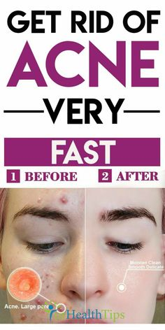 How to Get Rid of Pimples Fast Pimples are a common skin condition, especially during puberty, and they can grow How To Get Rid Of Pimples, Get Rid Of Blackheads, Winter Makeup, Fall Makeup, Natural Hair Mask, Best Acne Treatment, How To Grow Eyebrows, Remove Acne, Eye Makeup Tips
