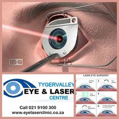 LASIK (laser-assisted in situ keratomileuses) is an outpatient refractive surgery procedure used to treat nearsightedness farsightedness and astigmatism. A laser is used to reshape the cornea  the clear round dome at the front of the eye  to improve the way the eye focuses light rays onto the retina at the back of the eye. #Eyelaserclinic