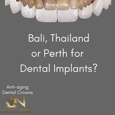 The Best Dental Implant Clinic in Perth. Dental surgery is his passion and he has spent many years mastering dental implant placements. Affordable Dental Implants, Teeth Implants, Dental Crowns, Overseas Travel, Dental Services, Problem And Solution, Dentistry, Perth, Anti Aging