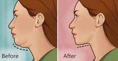 How to get rid of a double chin