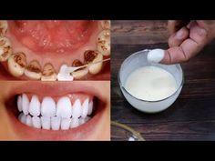 Kako sam izbjeljivala zube kod kuće u 3 dana i uklonim zubni plak bez odlaska stomatologu - YouTube