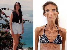 El drama de Valeria: luego de ser reina de belleza se convirtió en la mujer más anoréxica del mundo - Mundo   diariouno.com.ar