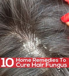 Oily Hair Remedies, Dry Scalp Remedy, Home Remedies For Dandruff, Top 10 Home Remedies, Home Remedies For Hair, Itchy Scalp, Natural Remedies, Scalp Scrub, Health Remedies