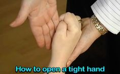 How to open a tight hand - Stroke intervention, spasticity