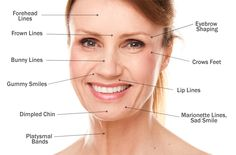 Check out this image explaining the key areas to address with #Botox! It's a fantastic treatment!