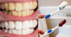 Top Oral Health Advice To Keep Your Teeth Healthy. The smile on your face is what people first notice about you, so caring for your teeth is very important. Unluckily, picking the best dental care tips migh Teeth Whitening Remedies, Best Teeth Whitening, Aloe Vera, Beautiful Teeth, How To Prevent Cavities, Best Dentist, Bad Breath, White Teeth, Tips Belleza