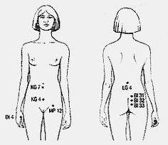 Akupunkturtherapie der Endometriose