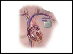 Global Implantable Cardioverter Defibrillator Market Trend and Forecast to 2021 @ http://www.orbisresearch.com/reports/index/global-implantable-cardioverter-defibrillator-market-trend-and-forecast-to-2021