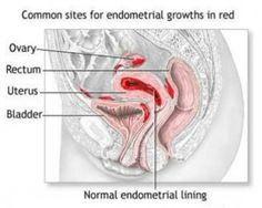 Pregnancy does not cure endometriosis but symptoms appear to improve during pregnancy. This is because higher progesterone levels can suppress the endometriosis but does not eradicate the disease itself.   http://indiraivf.com