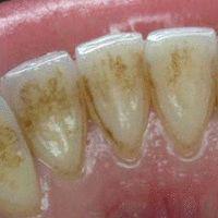 Sie werden es nicht glauben, aber DIES hellt Zähne in nur wenigen Stunden auf!