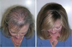 Queda de cabelo é um assunto que preocupa a maioria das pessoas.