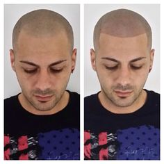 1000 images about scalp micropigmentation on pinterest