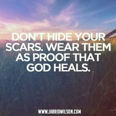 Scars are beautiful!