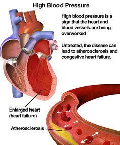 High blood pressure - disease of the modern age