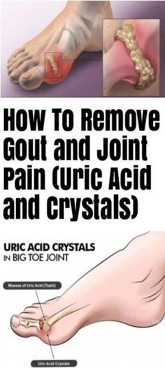 How To Remove Gout And Joint Pain (Uric Acid And Crystals) Healthy Skin Care, Healthy Beauty, Health And Beauty, Arthritis Causes, Types Of Arthritis, Gout Remedies, Natural Remedies, Health Remedies, Herbal Remedies