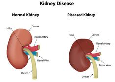 There's something you should know about chronic kidney disease. Most doctors will tell you there is no alternative treatments for kidney problems besides costly dialysis or a transplant to deal with impaired renal function. What Is Kidney Failure? Kidney dialysis is a treatment that uses a special machine to filter harmful wastes, salt and excess from your blood. But there is another option. It's ...