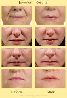 Juvederm is a hyaluronic acid filler (something that's naturally in your body) that works to fill lines and wrinkles. It is one of the most popular fillers on the market today.