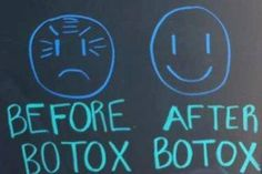 before botox - after botox