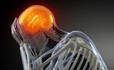 Consejos para prevenir el dolor de cabeza