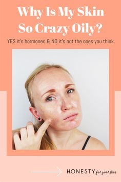 What causes an overproduction of sebum? What causes increased sebum production? Yes it's hormones but not the ones you think. Click this pin to find out more. Glowy Skin, Oily Skin, All Natural Skin Care, Natural Beauty, How To Get Rid Of Acne, How To Find Out, Get Rid Of Spots, Acne Help, Acne Solutions