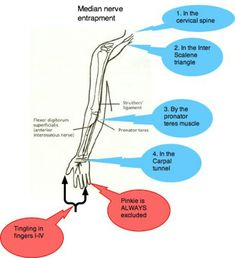 Carpal tunnel exercises are worth trying before visiting either a surgeon or chiropractor if the numbness excludes the pinkie. Carpal Tunnel Relief, Carpal Tunnel Syndrome, Tingling In Fingers, Carpal Tunnel Exercises, Neurological Assessment, Personal Training Courses, Extensor Muscles, Median Nerve, Muscle And Nerve