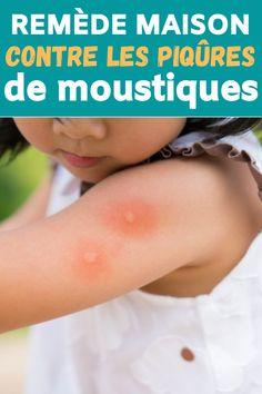 Remède maison contre les piqûres de moustiques