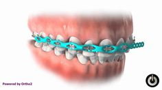 Power chain Power chain is a tool we use in orthodontics to close space and keep spaces closed. In most cases we cannot use power chains from the beginning, until we have worked up to a strong/stiff wire. Basically, it is the small colored elastics that hold the wire to the bracket, but they are all connected. They stretch from bracket to bracket and slowly pull teeth together. http://youtu.be/nR4kPkpl8is Do you want more information? Please contact us at (248) 391-4477.