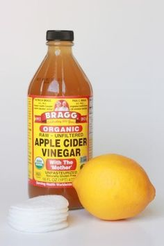 Organic Apple Cider Vineger & Lemon Juice Toner-Lighten skin! apple cider vinegar contains acetic acid which is an effective bleaching agent, lemon juice is a natural skin lightener & astringent; Dilute ACV with equal parts water-apply on melasma, let dry, rinse w/warm water or leave on; Apply lemon juice on melasma, gently rub in 1-2 minutes then leave on for 20 minutes, rinse off w/warm water, apply 2x daily