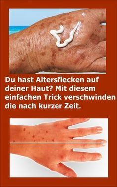 You have age spots on your skin? With this simple . Mit diesem einfachen Trick verschwinden d… You have age spots on your skin? With this simple trick they disappear after a short time. Oil For Hair Loss, Brittle Nails, The Face, Hair Loss Shampoo, Prevent Hair Loss, Hair Loss Treatment, How To Apply Makeup, Wellness Tips, Healthy Skin