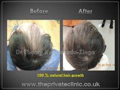Hair Transplant - Results. Dr Thomy Kouremada-Zioga. Part 2