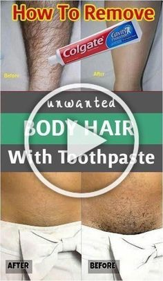 remove unwanted hair permanently/remove unwanted hair/remove unwanted hair with vaseline/remove unwanted hair naturally/remove unwanted hair permanently bikinis/Remove Unwanted Hair/ #HairRemoval #UnwantedHairRemovalByLaser #BodyHairRemovalBahrain #UnwantedBodyHair #RemoveUnwantedHair #HairRemovalMethods Upper Lip Hair Removal, Permanent Facial Hair Removal, Underarm Hair Removal, Back Hair Removal, Electrolysis Hair Removal, Remove Unwanted Facial Hair, Unwanted Hair, Best Hair Removal Products, Hair Removal Methods