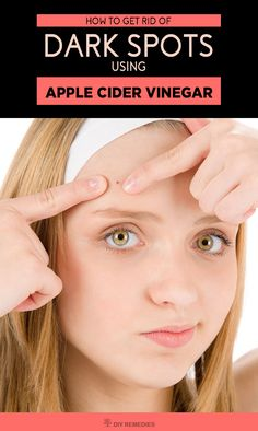 Apple Cider Vinegar to Get Rid of Blackheads    There are many cosmetic products available for removing blackheads like facials, expensive scrubs, nose strips, etc. that makes are painful and costly but the usage of natural one at home will give long lasting results and cost effective.