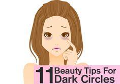 dark circles under eyes