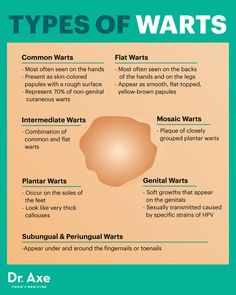 Types of warts - Dr. Axe