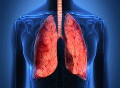 Nice Info About Malignant Pleural Mesothelioma!...   MAA Mesothelioma Attorney Assistance Check more at http://ukreuromedia.com/en/pin/931/