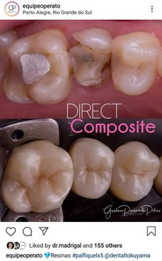 Dental Composite, Teeth, Food, Orthodontics, Hair, Essen, Tooth, Dental, Yemek