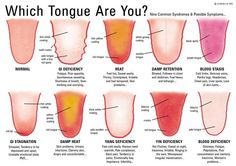 Chinese Medicine Tongue Diagnosis chart. The most common tongue patterns; part of the diagnosis but the tongue definitely gives a lot of information regarding constitutional imbalances.