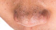 La présence des points noirs sur la peau du visage n'est jamais chose agréable. Ces comédons sont très petits mais tellement disgracieux et inesthétiques qu'on a qu'une envie, s'en débarrasser au plus vite. On peut avoir des points noirs au niveau du nez, du front ou du menton. Mais c'est sur le nez qu'on les ...