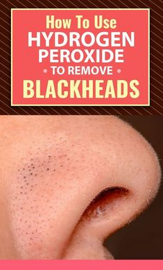How To Use Hydrogen Peroxide To Remove Blackheads? - How To Use Hydrogen Peroxide To Remove Blackheads: Are you tired of those blackheads on your face? Beauty Advice, Health And Beauty Tips, Beauty Care, Beauty Skin, Diy Beauty, Homemade Beauty, Beauty Guide, Beauty Ideas, Beauty Secrets
