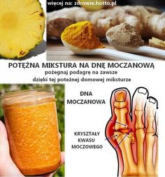 zdrowie.hotto.pl-dna-moczanowa-podagra-leczenie-mikstura-domowy-sposob
