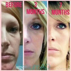 Results using Nerium consistently  Www.lc2305.nerium.com