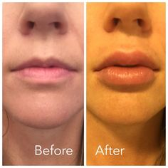 How to get Kylie Jenner's Lips at home, in 2 minutes - Seriously! With CandyLipz - MyStyleSpot Natural Lip Plumper, Plumping Lip Gloss, Botox Fillers, Lip Fillers, Dermal Fillers, Natural Hair Mask, Natural Lips, Lip Art, Facial Warts