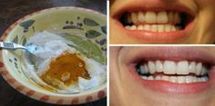 This Turmeric Anti-Inflammatory Paste Will Reverse Gum Disease, Swelling and Kill Bacteria! – Healthy Magazine