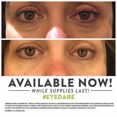 OOOOOOhhhhh Do you (or anyone you know) need this?  I'm putting in orders today!!!! <3 this stuff!!! #ItWorks www.juliewrapsu.com