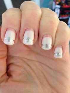 Orthodontic nails 😏